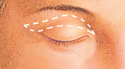 Eyelid Surgery, Outline